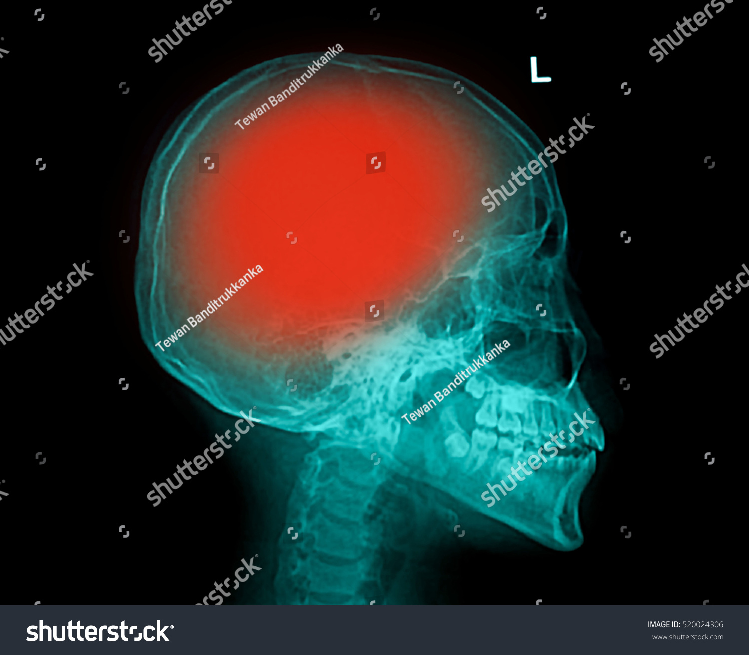 hight resolution of film x ray skull lateral with stroke