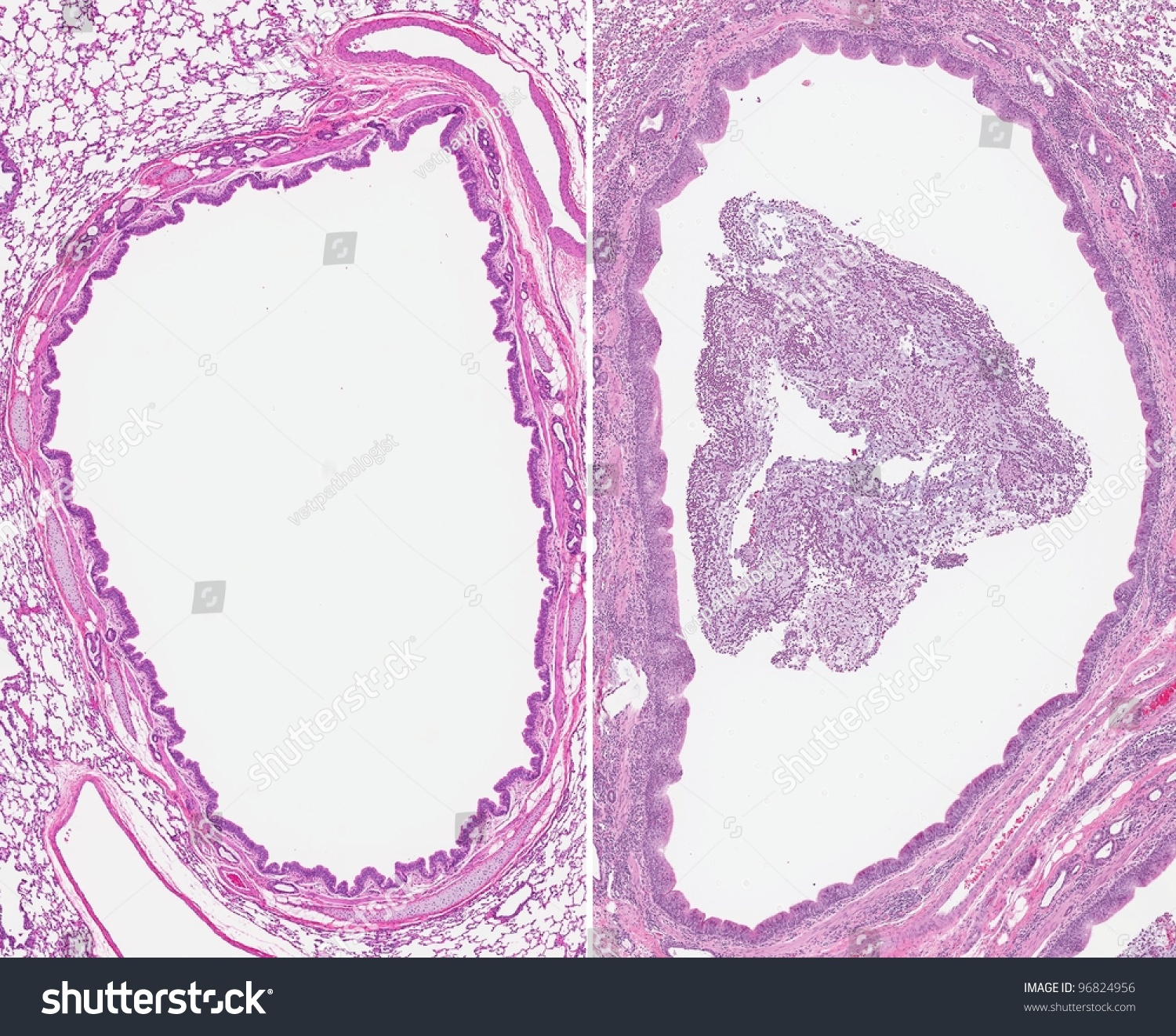 Acute Bronchitis. Inflammation Of The Bronchi (Right) With The Airway Filled With Thick Mucus, Inflammatory Cells And Debris (Sputum). Normal ...