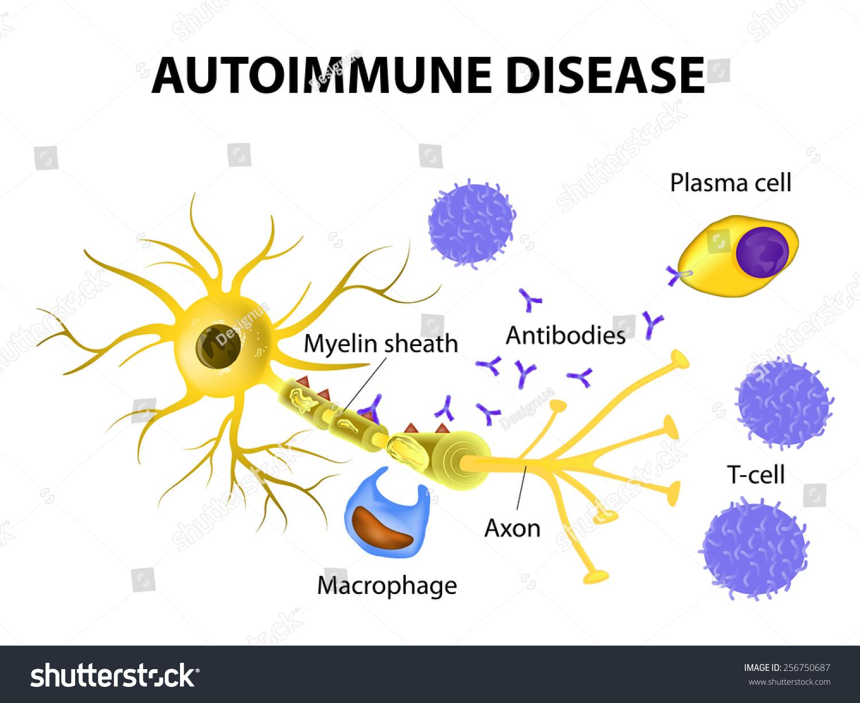 Autoimmune Disease. Multiple Sclerosis - Immune Cells Attack The Myelin Sheath That Surrounds Nerve Cells. Antibodies Initiate Myelin Injury ...