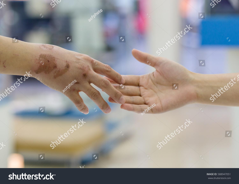 Blisters On Hands Body Stock Photo 588947051 - Shutterstock