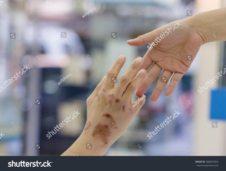 Blisters On Hands Body Stock Photo 588947063 - Shutterstock