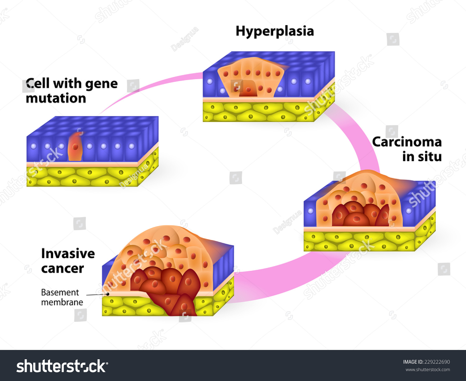 Cancer. Cancer Cells In A Growing Tumor. Stages Of Carcinogenesis Stock Photo 229222690 : Shutterstock