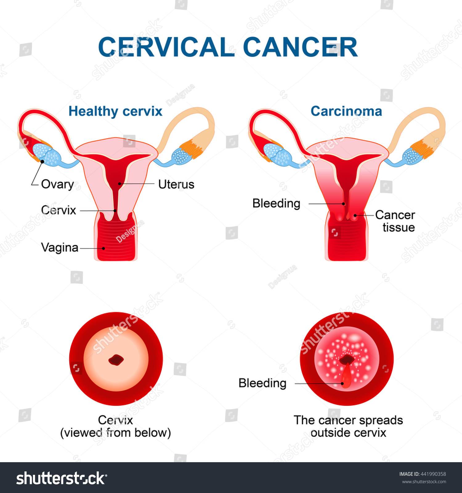 Cervical Cancer. Malignant Neoplasm Arising From Cells In The Cervix Uteri. Vaginal Bleeding. Stock Photo 441990358 : Shutterstock