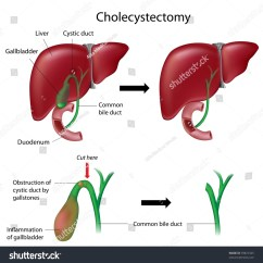 Gastric Bypass Diagram Zex Nitrous Wiring Cholecystectomy Gallbladder Removal Surgery Stock