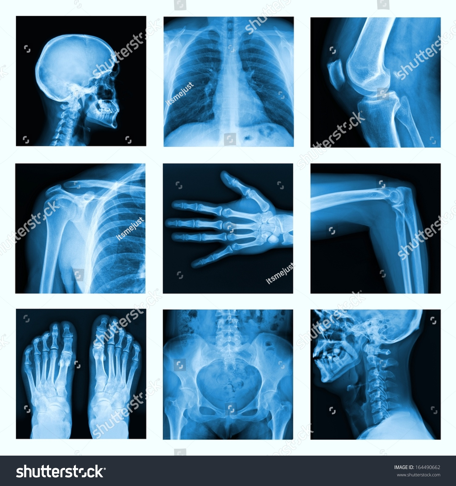 Collage Many Xrays Very Good Quality Stock Photo