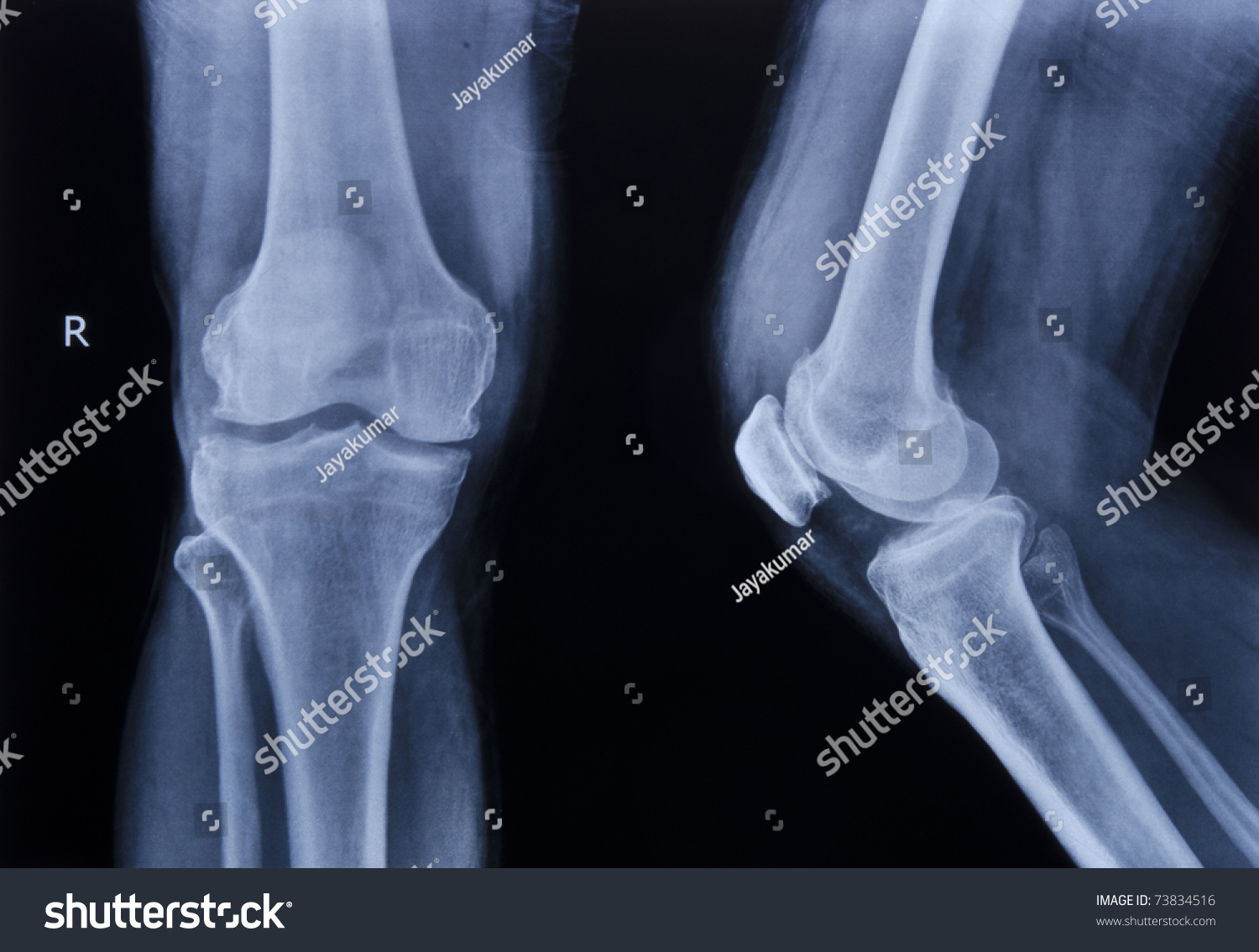 Collection Xray Normal Knee Stock Photo