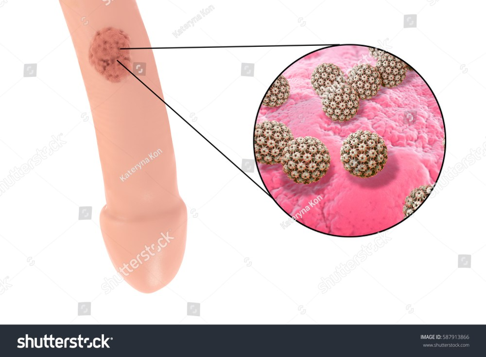 medium resolution of common locations of genital warts human papillomavirus hpv lesions in men and close