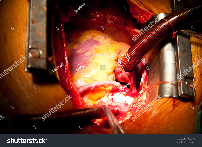 Coronary Artery Bypass Grafting On Open Heart Stock Photo 61720399 : Shutterstock