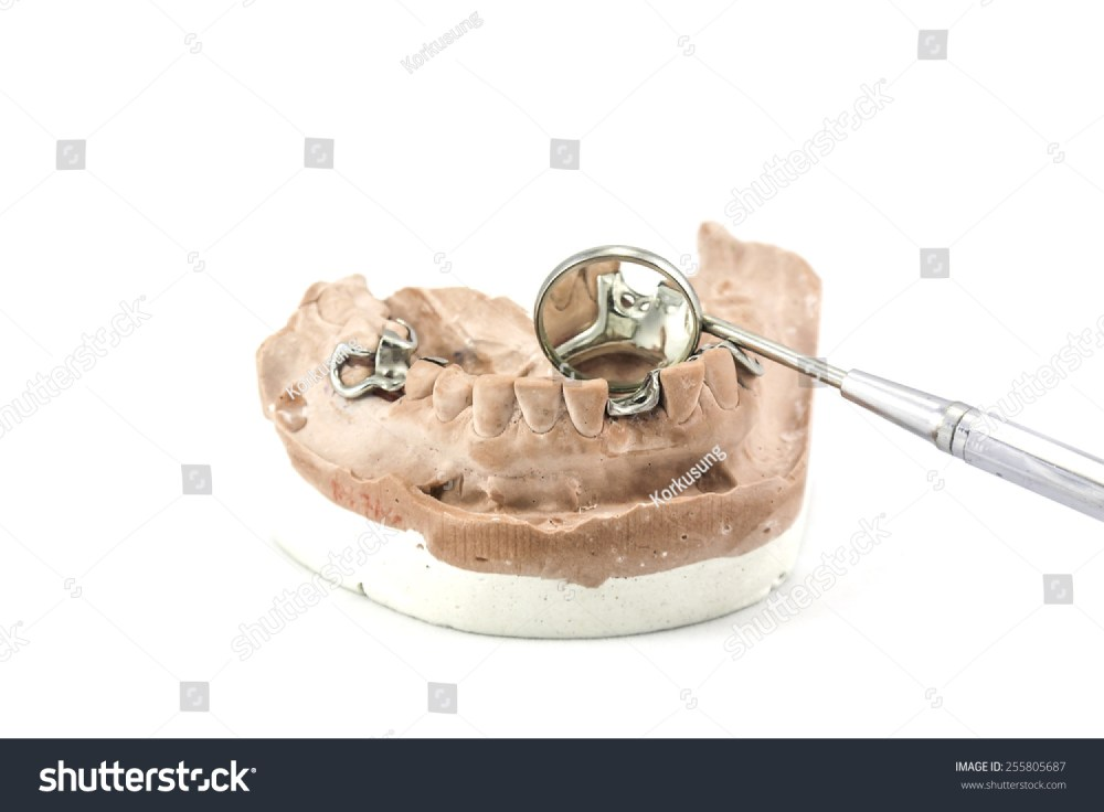 medium resolution of dental cast with metal framework for partial denture