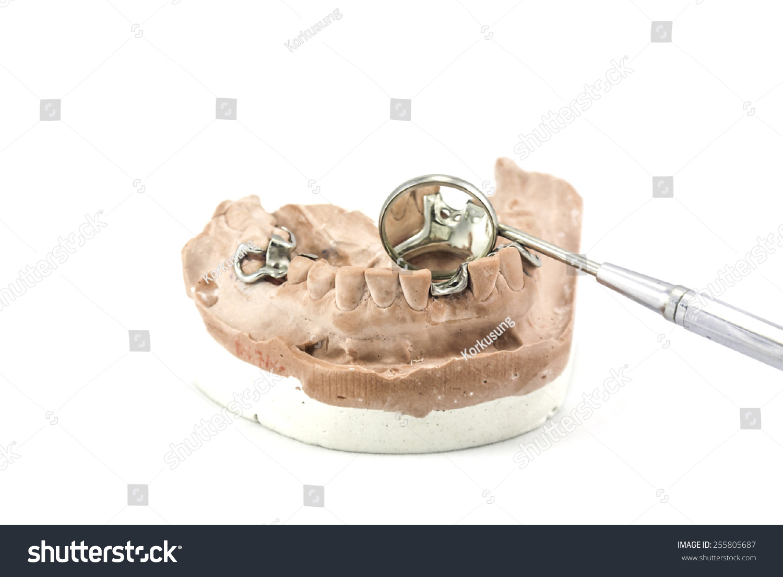 hight resolution of dental cast with metal framework for partial denture