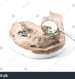 dental cast with metal framework for partial denture  [ 1500 x 1104 Pixel ]