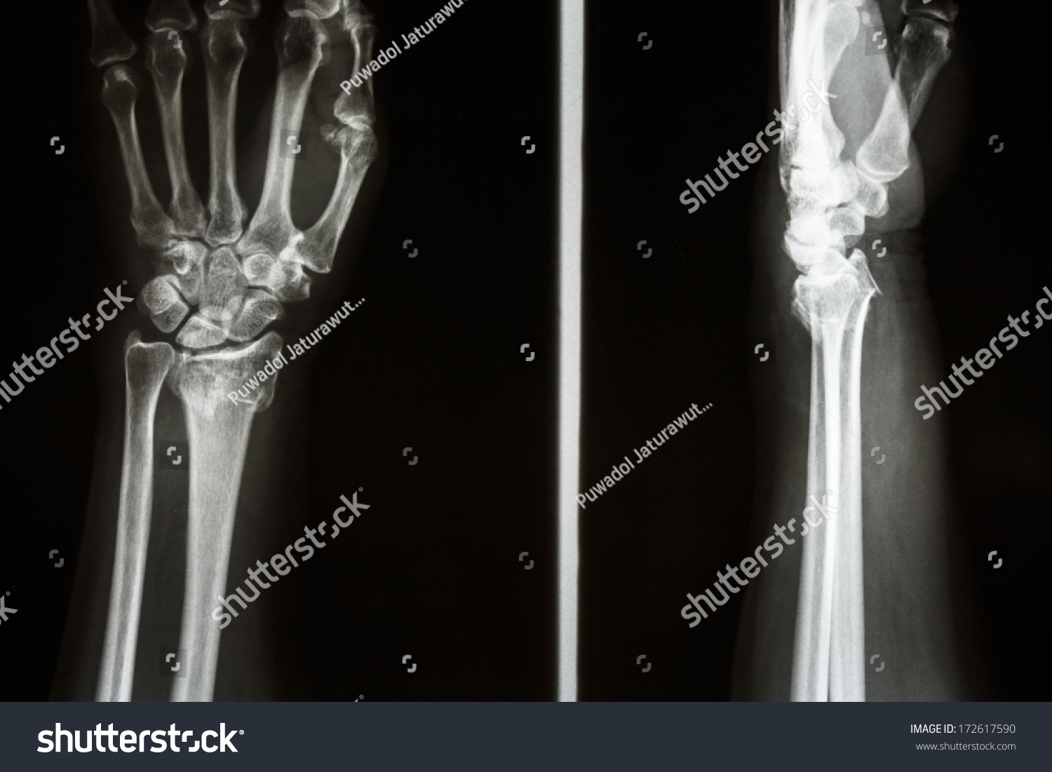 Film X-Ray Show Fracture Distal Radius (Colles' Fracture) (Wrist) Stock Photo 172617590 : Shutterstock