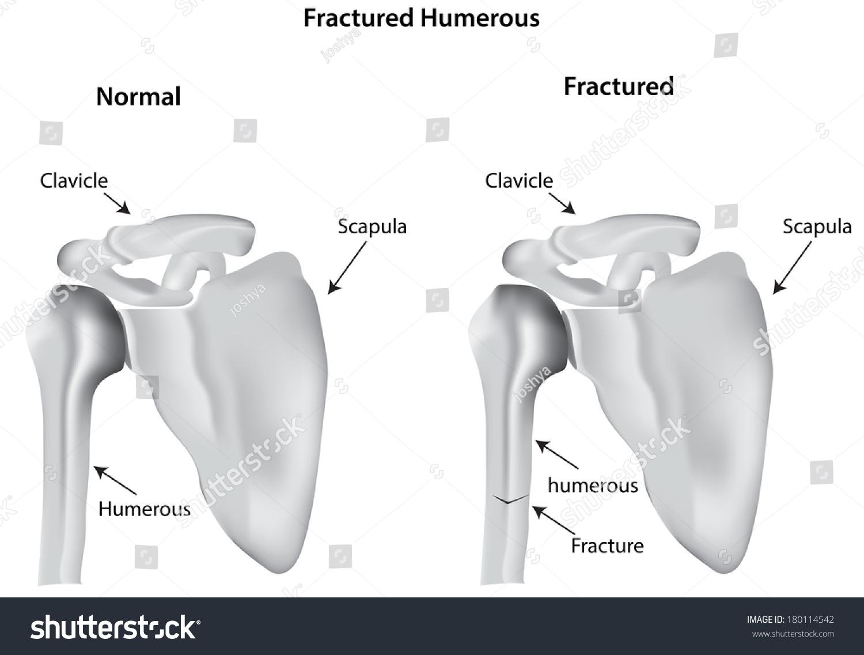 humerus bone diagram sailboat wiring fractured humerous stock photo 180114542