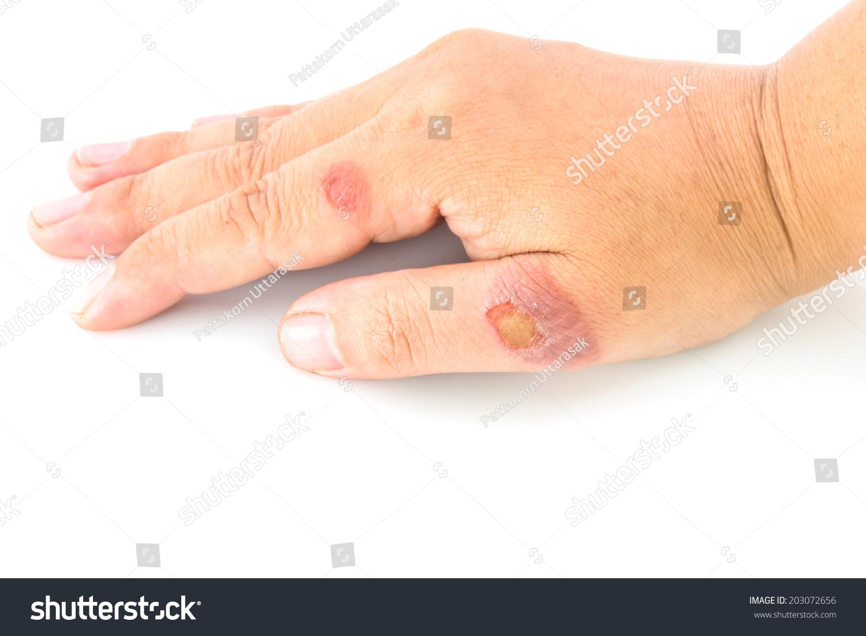Hand Teenager Blisters Due Burns Stock Photo 203072656 - Shutterstock