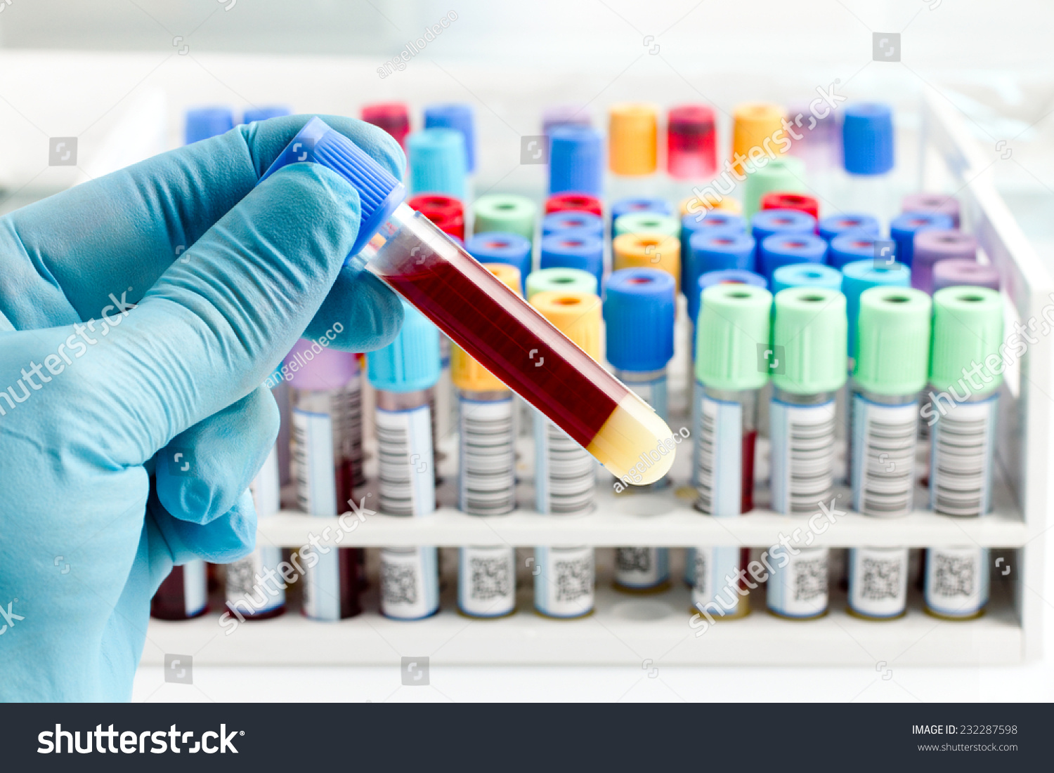 Hand Lab Technician Holding Blood Tube Stock Photo