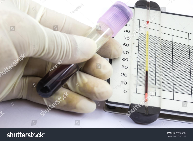Hematocrit Test Hematology Laboratory Stock Photo 276188714 - Shutterstock