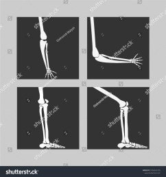 human knee and foot leg and hands arms in a bent and unbent view [ 1500 x 1600 Pixel ]