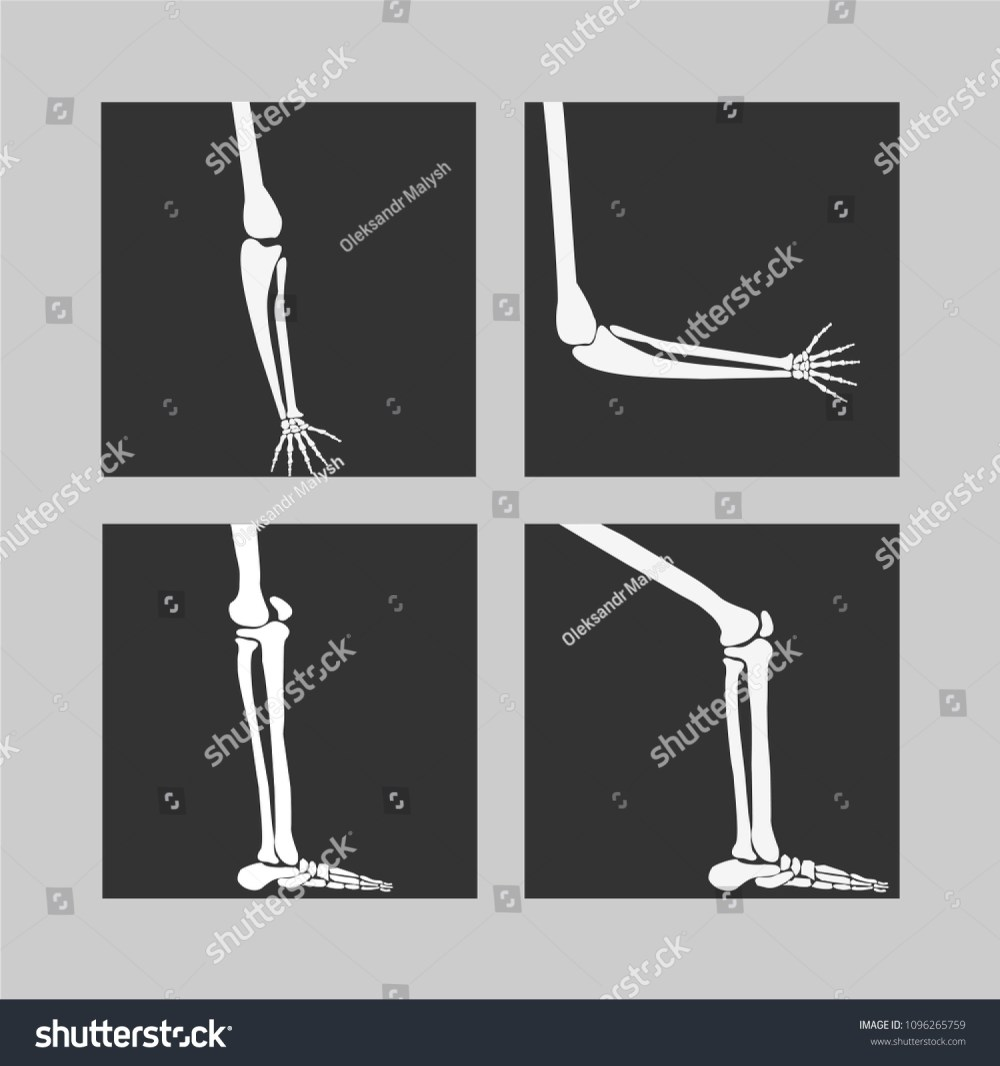 medium resolution of human knee and foot leg and hands arms in a bent and unbent view