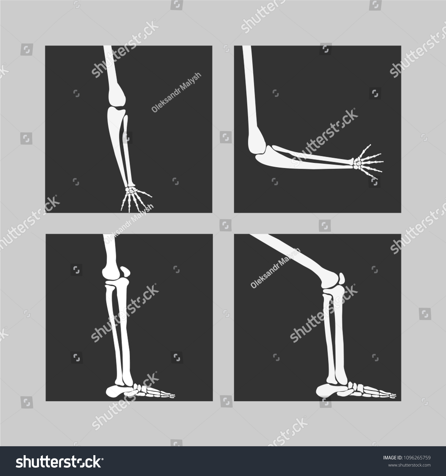 hight resolution of human knee and foot leg and hands arms in a bent and unbent view