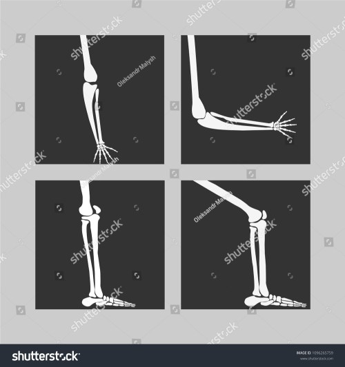 small resolution of human knee and foot leg and hands arms in a bent and unbent view
