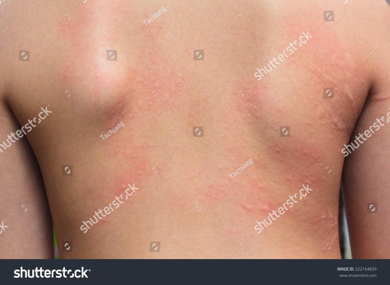 ... human-skin-presenting-an-allergic-reaction-allergic-rash-222164839.jpg