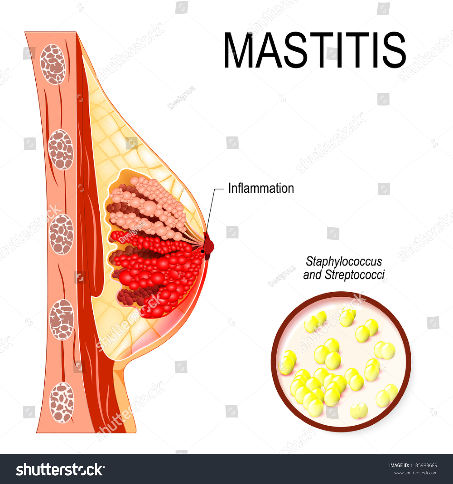 hight resolution of mastitis inflammation of the breast abscess formation human anatomy female reproductive