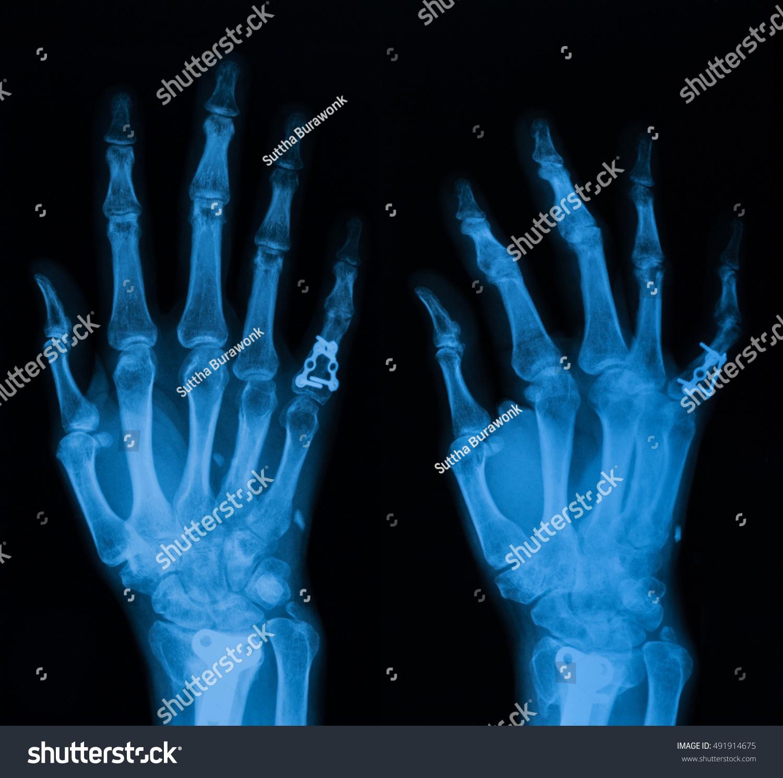Pa Oblique Views Hand Include Wrist Stock Photo 491914675 - Shutterstock