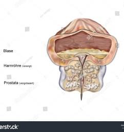 prostate enlarged [ 1500 x 1225 Pixel ]