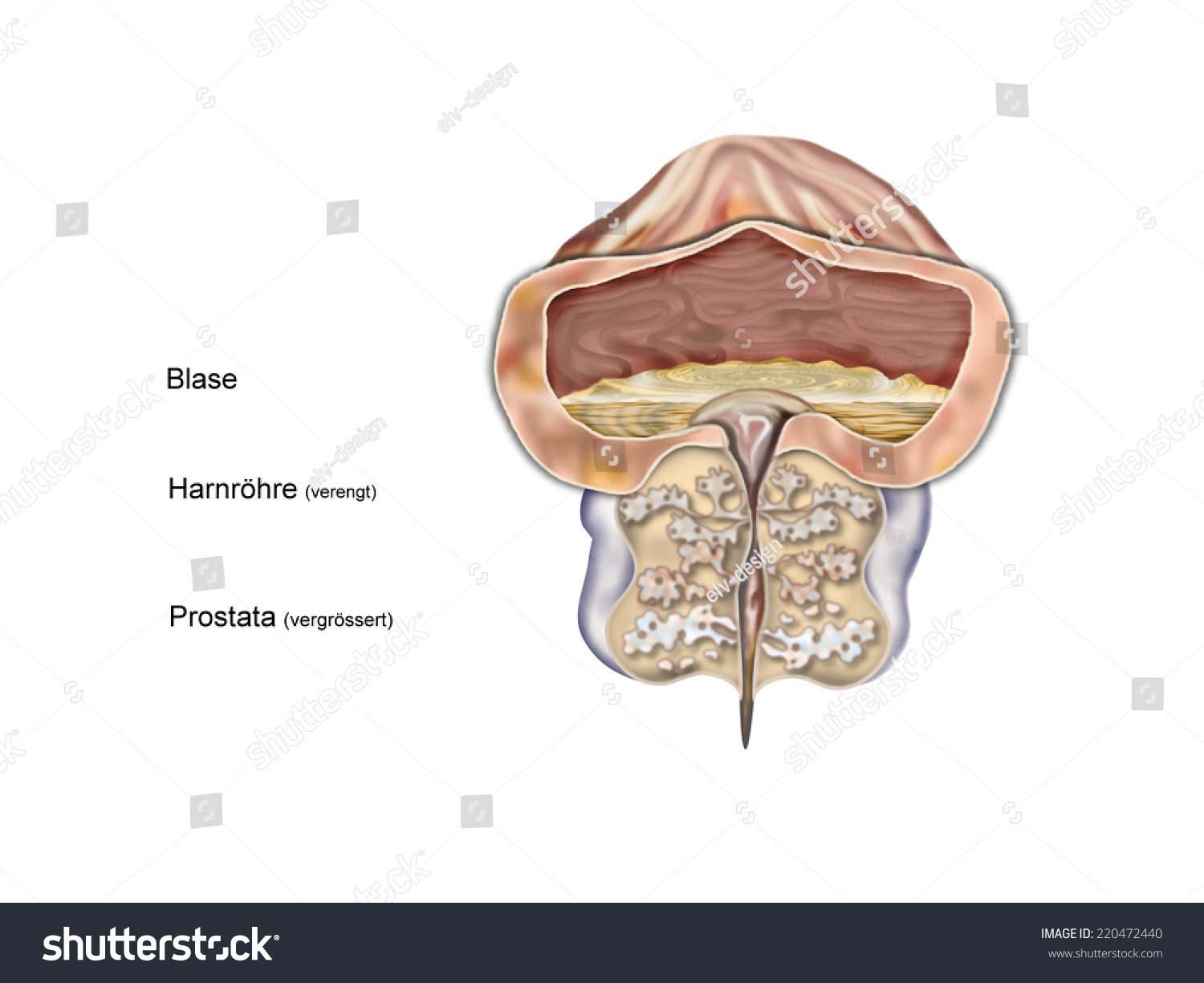 hight resolution of prostate enlarged