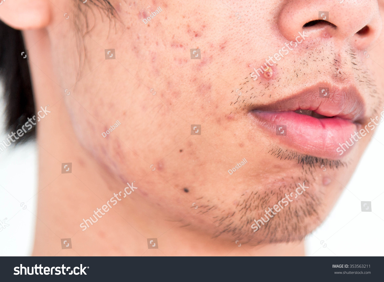 Severe Acne Stock Photo 353563211 : Shutterstock