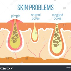 Diagram For Pimples On Face Ecobee Wiring Skin Problems Acne Clogged Pores Stock