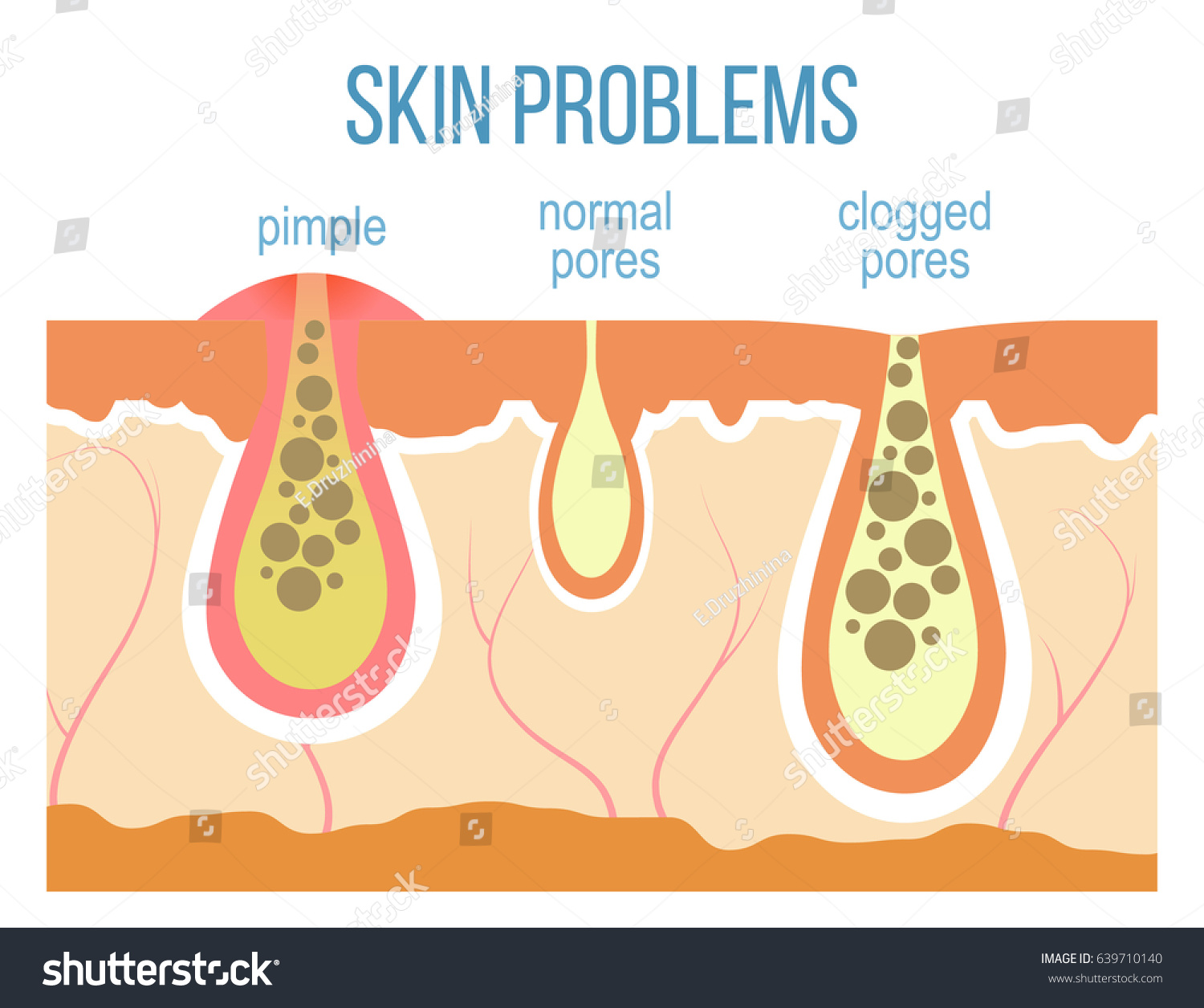 pimples on cheek diagram raid 5 concept with skin problems acne clogged pores stock