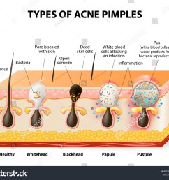 types acne pimples healthy skin whiteheads stock illustration skin care products blackhead acne diagram [ 1500 x 1284 Pixel ]