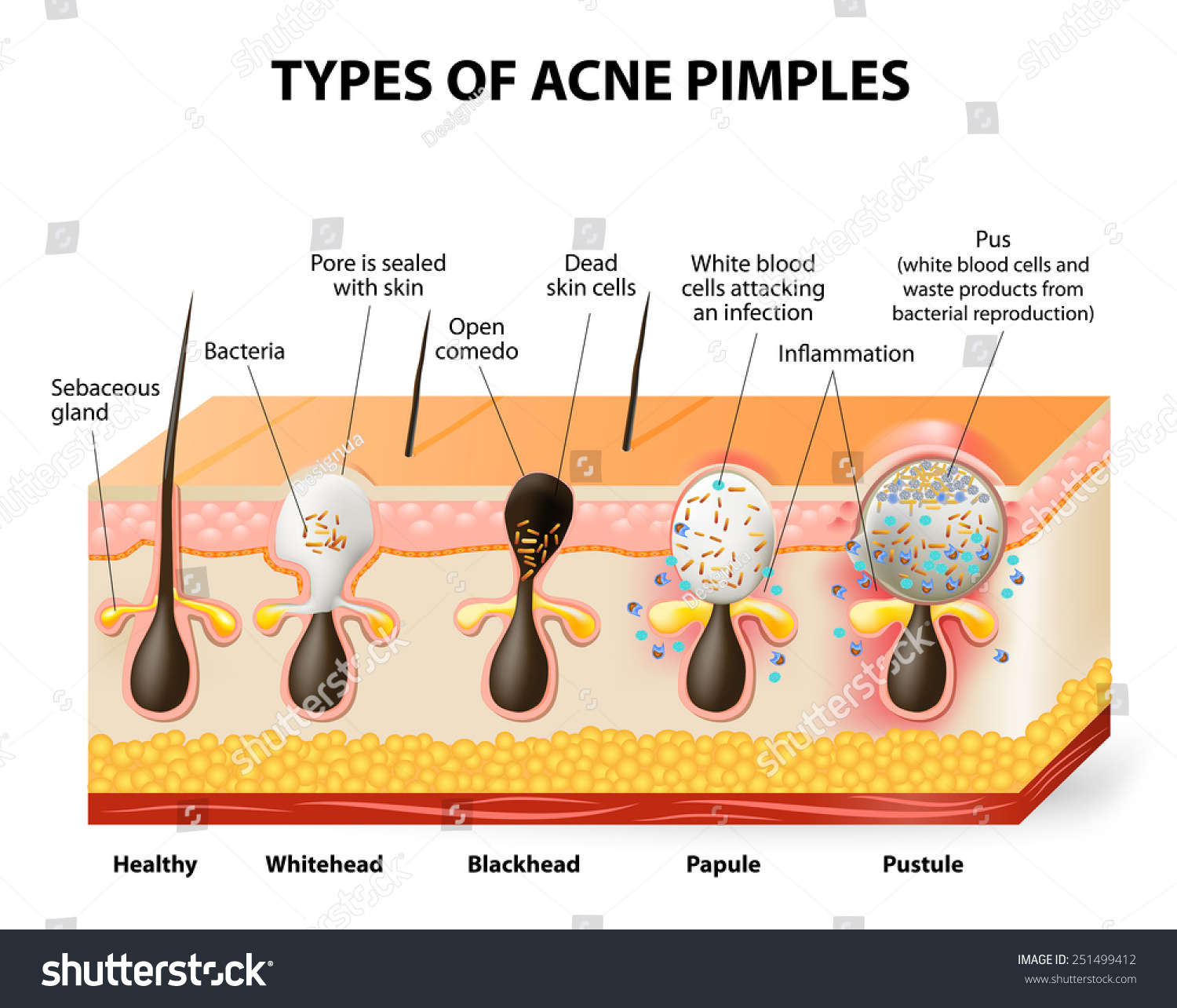 hight resolution of types acne pimples healthy skin whiteheads stock illustration skin care products blackhead acne diagram