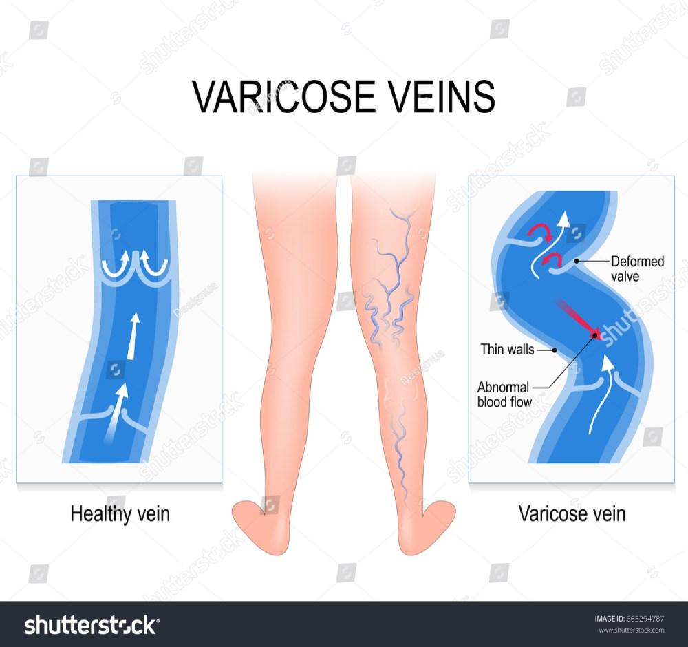 medium resolution of varicose veins and normal vein medical illustration