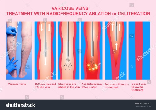 small resolution of varicose veins and treatment with radiofrequency ablation