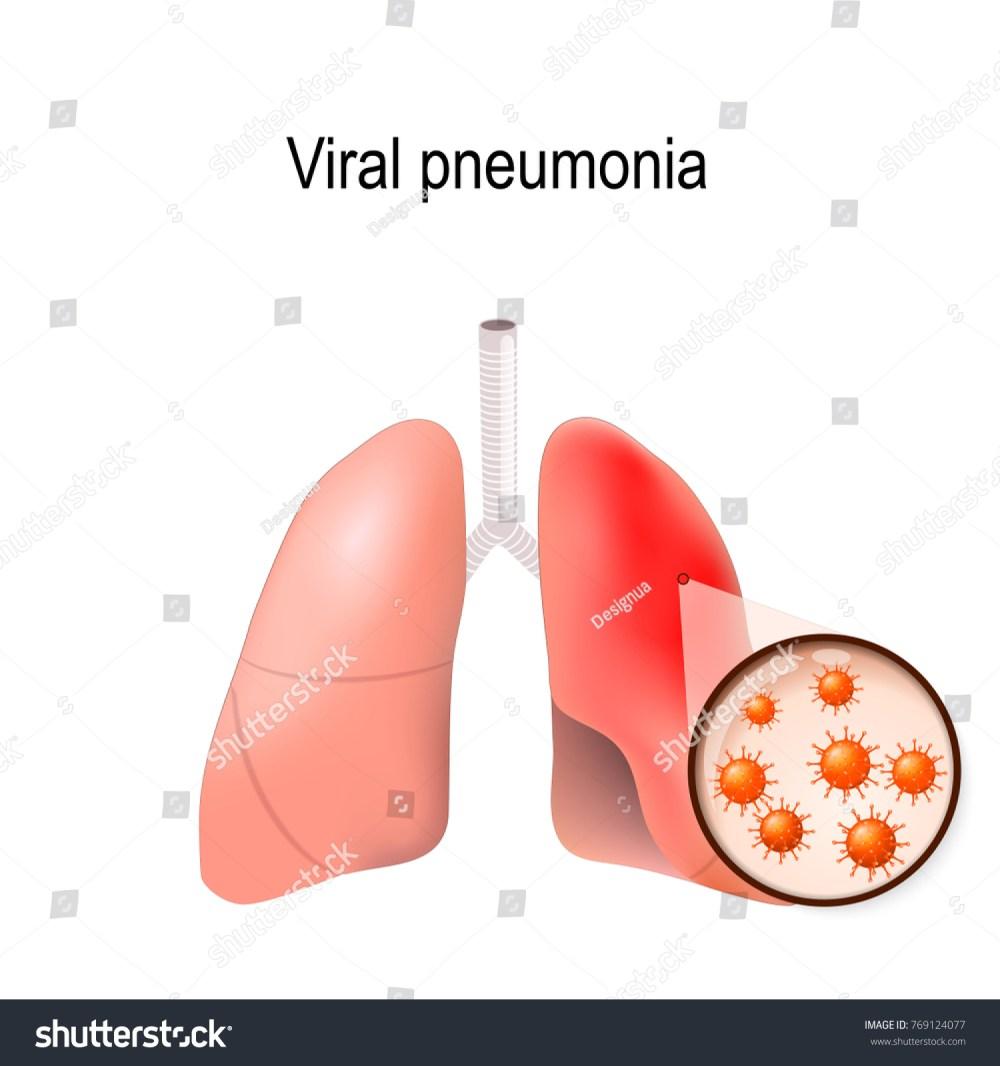 medium resolution of pneumonia virus diagram wiring diagram yer pneumonia virus diagram