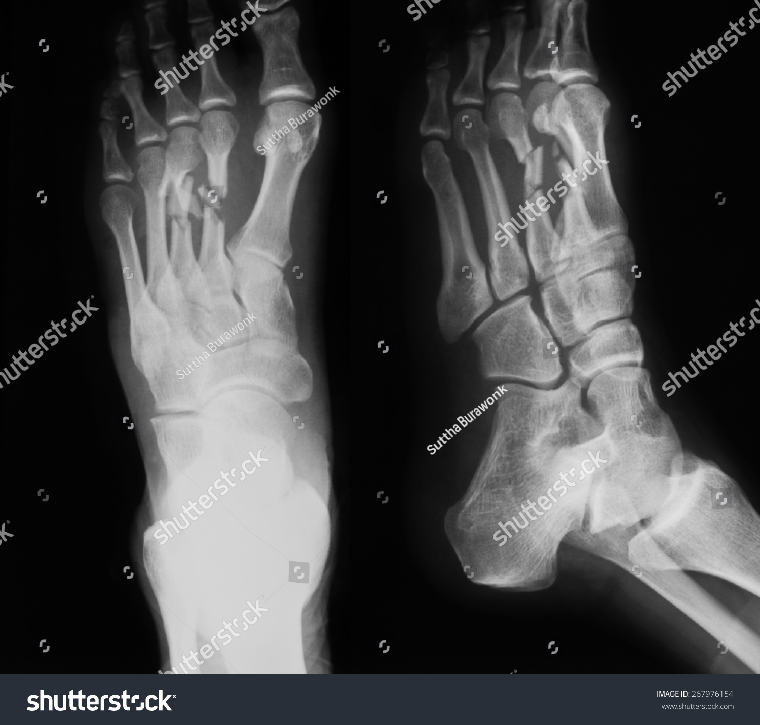 X-Ray Image Of Foot, Ap And Oblique View, Show Fracture Of The Second And Third Metatarsal Bones. Stock Photo 267976154 : Shutterstock