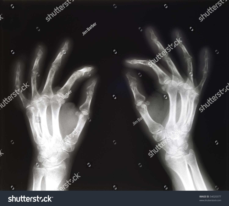 Xray Both Human Hands Pinching Position Stock Photo