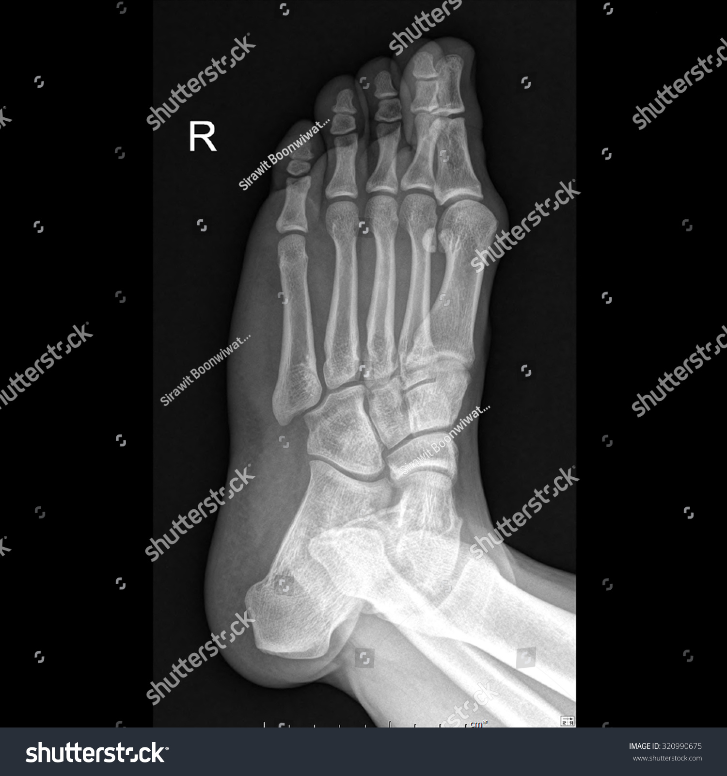X-Ray Right Foot Human Oblique View Stock Photo 320990675 : Shutterstock