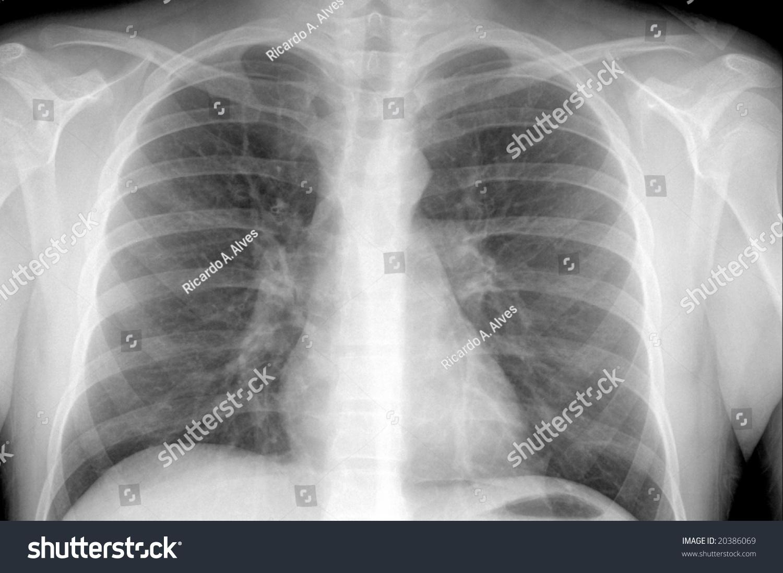 Xray Showing Males Chest Area Pneumonia Stock Photo