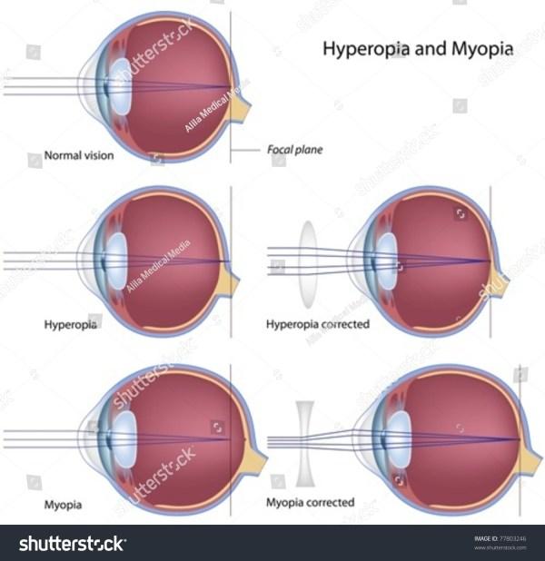 Myopia Hyperopia Diagrams Vtwctr