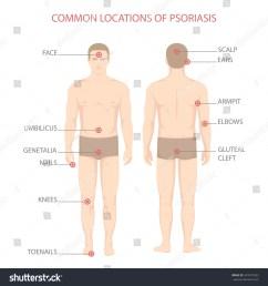 psoriasis illness diagram human body skin disease  [ 1500 x 1600 Pixel ]