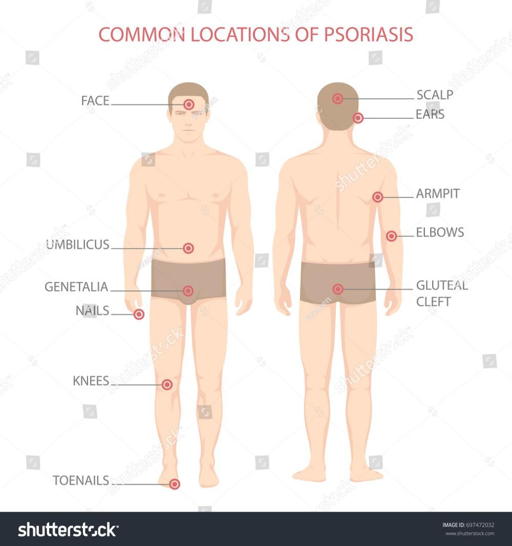 medium resolution of psoriasis illness diagram human body skin disease