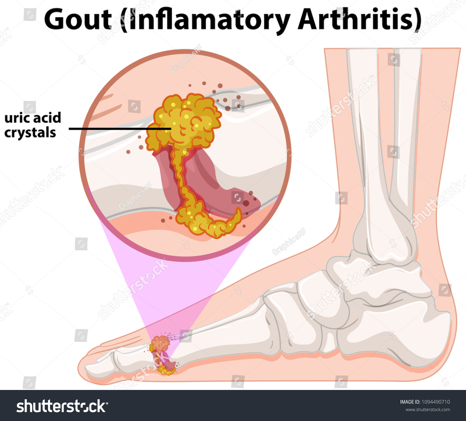 hight resolution of a medical human anatomy gout illustration
