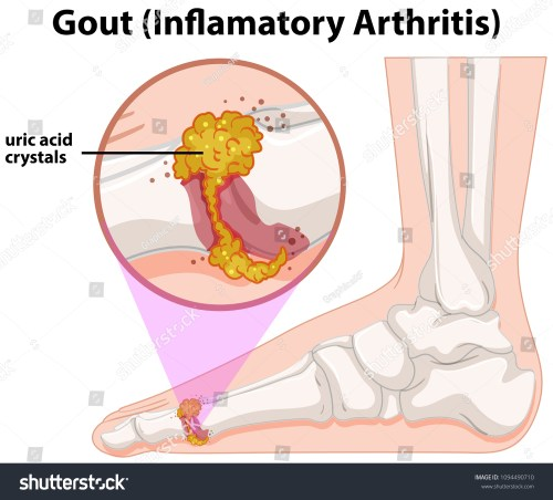 small resolution of a medical human anatomy gout illustration