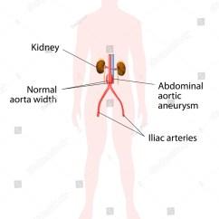 Abdominal Aorta Diagram Msd 3 Step Wiring Aortic Aneurysm Human Kidney And