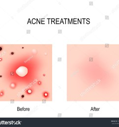 acne treatment before and after skin problems blackheads whiteheads pimples and [ 1500 x 1348 Pixel ]