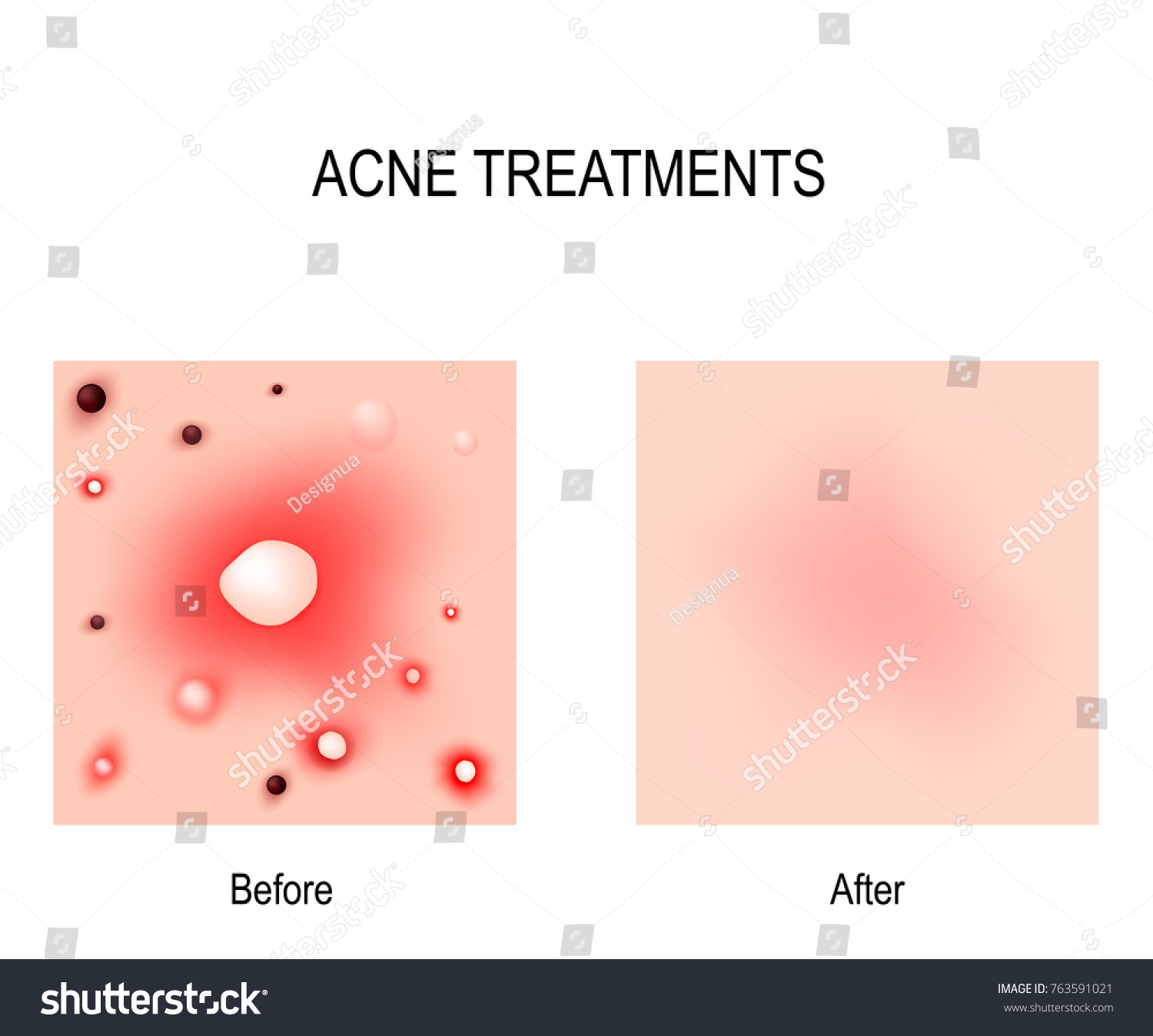 hight resolution of acne treatment before and after skin problems blackheads whiteheads pimples and