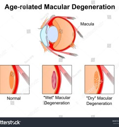 age related macular degeneration eye vision disorder diagram of the eye [ 1500 x 1314 Pixel ]